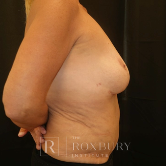 55-64 year old woman treated with Breast Implant Removal after 3850826