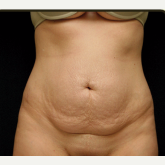 25-34 year old woman treated with Tummy Tuck before 3529217