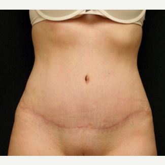 25-34 year old woman treated with Tummy Tuck after 3529217