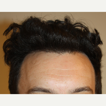 FUE Hair Transplant after 3630139