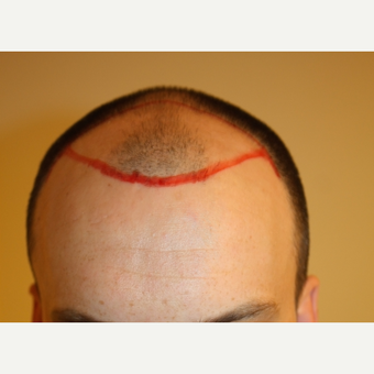 FUE Hair Transplant before 3630139