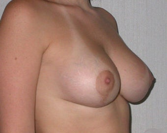 Breast Asymmetry Correction after 281331