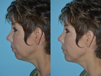 Voluma Chin Augmentation before 1516911