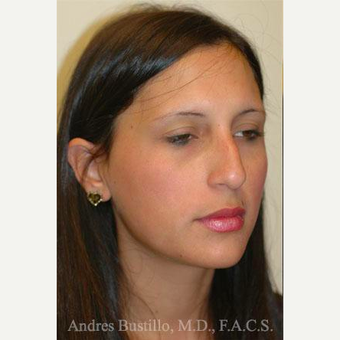 23 year old woman treated with Rhinoplasty before 3461014