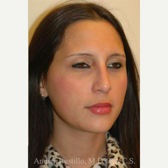 23 year old woman treated with Rhinoplasty after 3461014