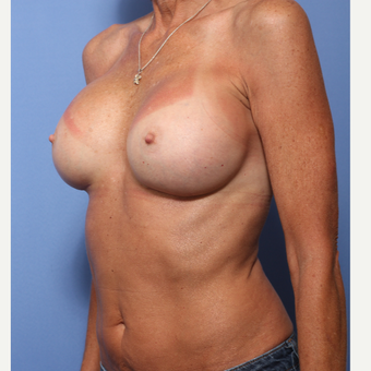 45-54 year old woman treated with Breast Augmentation after 3505851