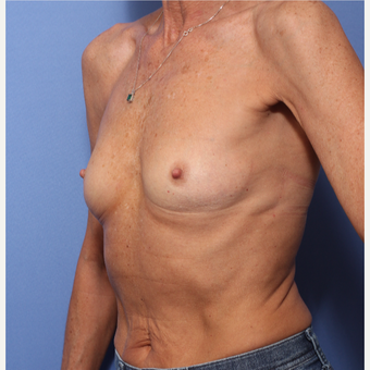 45-54 year old woman treated with Breast Augmentation before 3505851