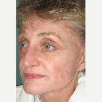 Face/Neck Lift with Perioral Laser