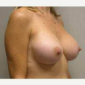 Breast Augmentation after 3681127