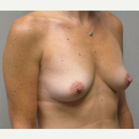 Breast Augmentation before 3681127