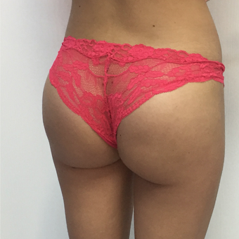 18-24 year old woman treated with Butt Implants after 3694953
