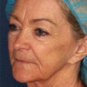 67 year old woman treated one time  with Laser Peel