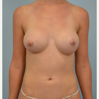 25 year old woman treated with Breast Augmentation - 300 cc silicone gel implants after 3432308