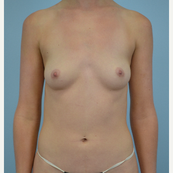 25 year old woman treated with Breast Augmentation - 300 cc silicone gel implants before 3432308