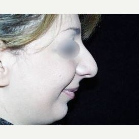35-44 year old woman treated with Nose Surgery and Chin Implant