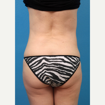 35-44 year old woman treated with Liposuction after 3227344