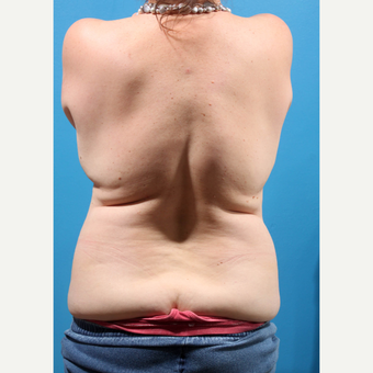 35-44 year old woman treated with Liposuction before 3227344
