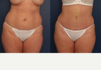 35-44 year old woman treated with Tummy Tuck before 3699092