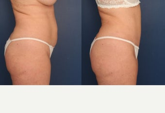 35-44 year old woman treated with Tummy Tuck after 3699092