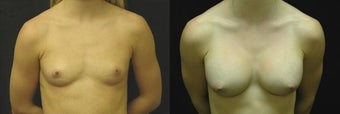 20 year old woman treated with Breast Augmentation before 2990248