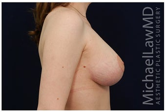 Breast Lift after 1256032