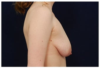 Breast Lift before 1256032