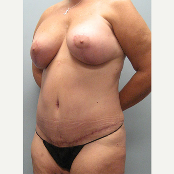 52 year old woman treated with Mommy Makeover after 3680084
