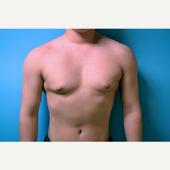 18-24 year old man treated with Male Breast Reduction before 2998853