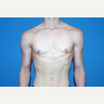 18-24 year old man treated with Male Breast Reduction after 2998853