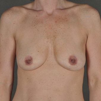 35-44 year old woman treated with Breast Augmentation before 3287030