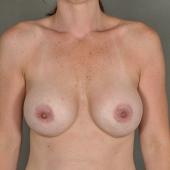 35-44 year old woman treated with Breast Augmentation after 3287030