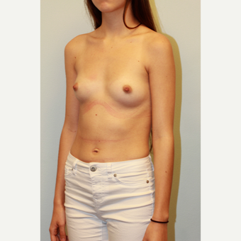 18-24 year old woman treated with Breast Augmentation before 3162955