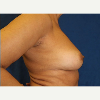 Fat Transfer to Breast (side view R)