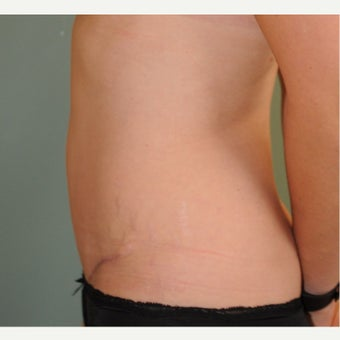 25-34 year old woman treated with Tummy Tuck after 2611917