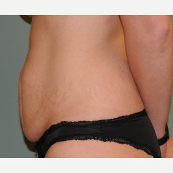 25-34 year old woman treated with Tummy Tuck before 2611917