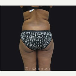 35-44 year old woman treated with Brazilian Butt Lift before 2339616