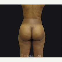 35-44 year old woman treated with Brazilian Butt Lift after 2339616