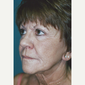 55-64 year old woman treated with Facelift before 3748337