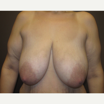 35-44 year old woman treated with Breast Lift before 3321070