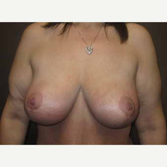 35-44 year old woman treated with Breast Lift after 3321070