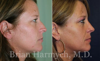 39 year-old female before and 9 months after Rhinoplasty before 3447141