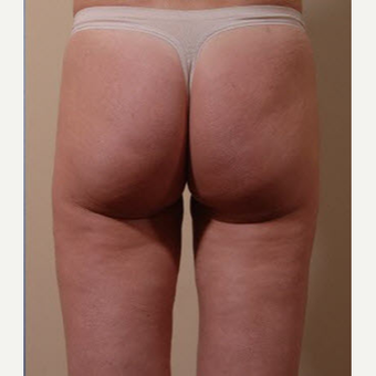 35-44 year old woman treated with Smart Lipo after 3705237