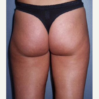 35-44 year old woman treated with Smart Lipo before 3705237
