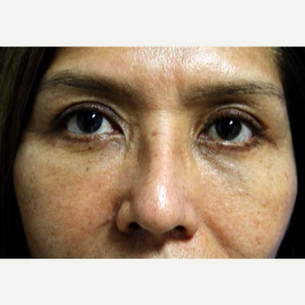 45-54 year old woman treated with Eyelid Surgery after 3093882