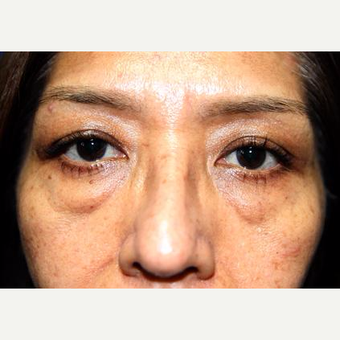 45-54 year old woman treated with Eyelid Surgery before 3093882