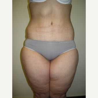 35-44 year old woman treated with Tummy Tuck after 3411464