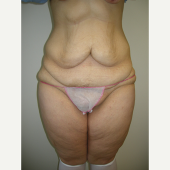 35-44 year old woman treated with Tummy Tuck before 3411464