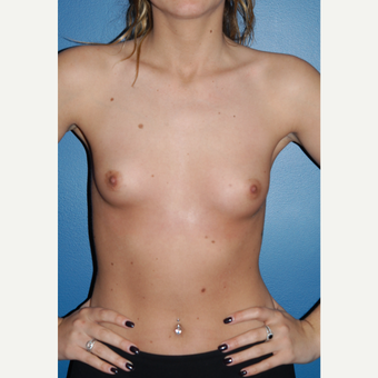 25-34 year old woman treated with Breast Augmentation before 3167117