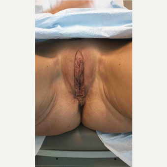35-44 year old woman treated with Labiaplasty after 3187501
