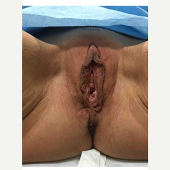 35-44 year old woman treated with Labiaplasty before 3187501